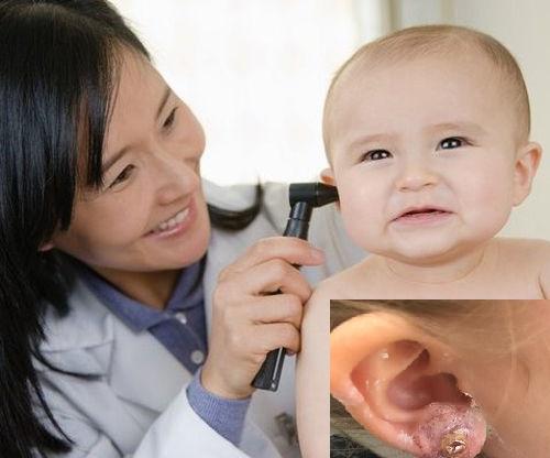 Bấm lỗ tai cho trẻ ngay từ khi còn nhỏ tiềm ẩn nhiều nguy cơ