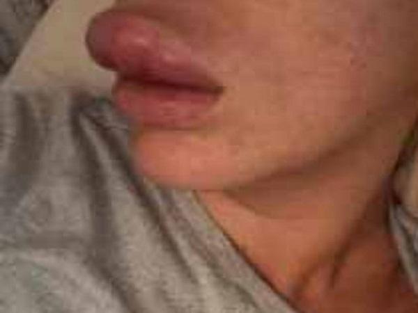 Cô gái suýt mất đôi môi vì tiêm chất làm đầy vào động mạch