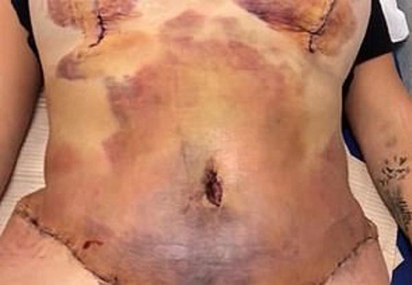 Người phụ nữ suýt chết sau cuộc đại phẫu thuật thẩm mỹ cắt bỏ da thừa