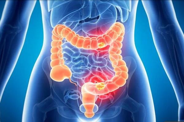 Thuốc kháng sinh có thể làm tăng nguy cơ ung thư ruột
