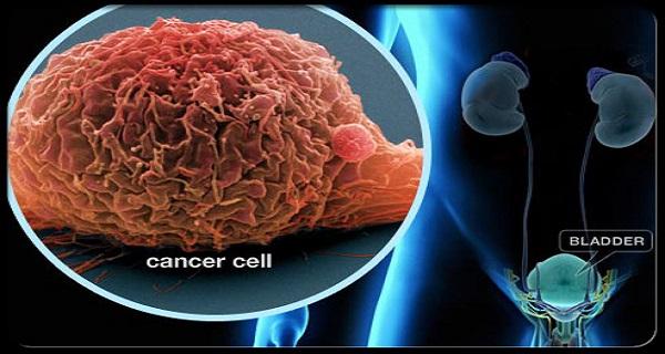 Nguy cơ mắc bệnh ung thư tiềm ẩn trong các thực phẩm hàng ngày