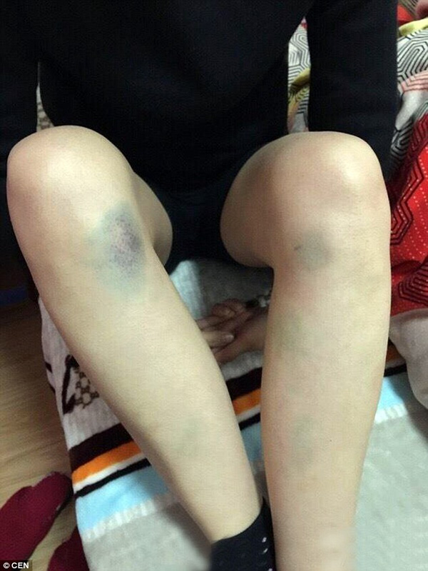Những vết bầm tím trên cơ thể gầy gò của nàng dâu nhà tỷ phú. Ảnh: Daily Mail