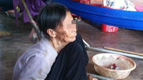 Cụ Nguyện đã 85 tuổi còn bị con gái đánh đập chỉ vì muốn chiếm đoạt mảnh đất