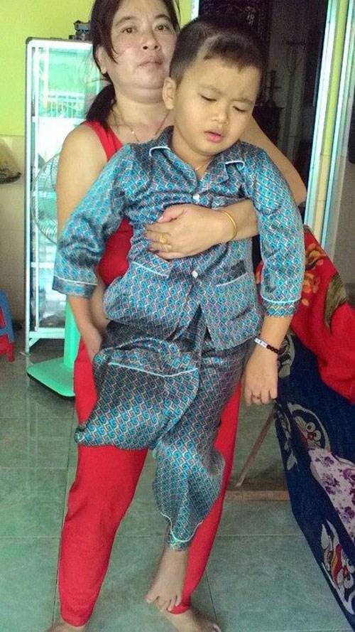 Bé trai 8 tuổi bị cưa chân do bị chấn thương hiếm gặp mà bác sĩ không phát hiện ra