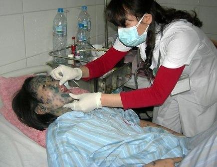 Bệnh thủy đậu rất dễ lây lan thành dịch vì vậy cần có biện pháp phòng ngừa kịp thời