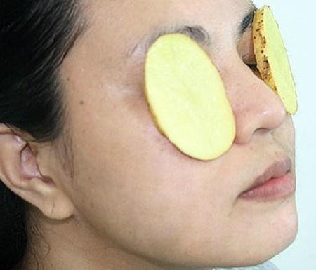 Có thể cắt hai lát khoai tây rồi đắp lên mặt
