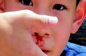 phòng ngừa chảy máu cam ở trẻ là một phương pháp giúp trẻ có sức khoẻ tốt