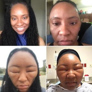 Khuôn mặt Chemese Arstrong biến dạng dần khi sử dụng thuốc nhuộm henna