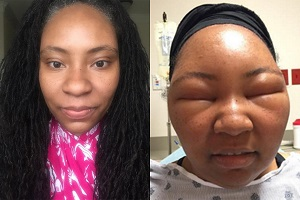 So sánh khuôn mặt Chemese Armstrong trước và sau khi nhuộm tóc