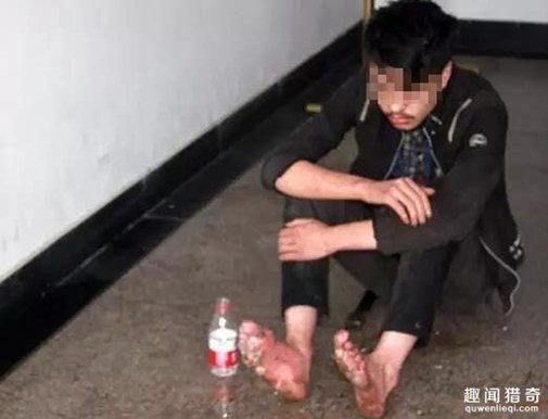 Đôi chân của Chen bị phồng rộp vì nắng nóng và đang dần thối rữa. Ảnh: People Daily