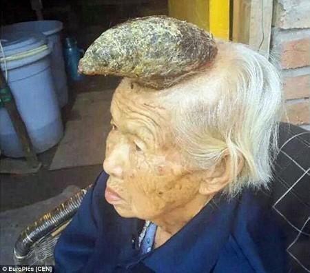 Nguyên nhân dẫn đến câu chuyện lạ người mọc sừng ở Trung Quốc là do bà Liang mắc phải chứng bệnh da sừng hiếm gắp