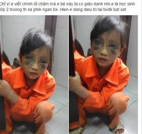 Nữ sinh tiểu học bị cô giáo đánh tím mặt sức khỏe đang dần bình phục