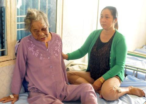 Khắp người bà Bảy (nạn nhân của vụ việc con đánh mẹ già ở Gia Lai) bầm tím vì bị nghịch tử hành hung