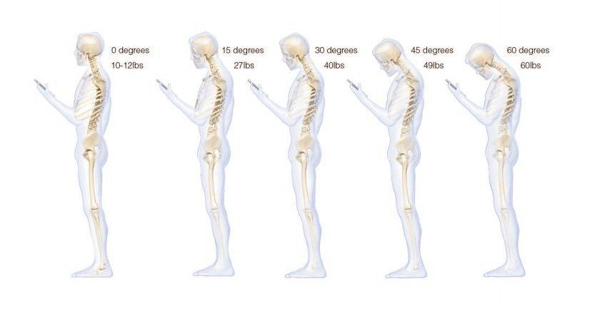 Tư thế sử dụng điện thoại có thể gây cong vẹo cột sống nhiều mức độ