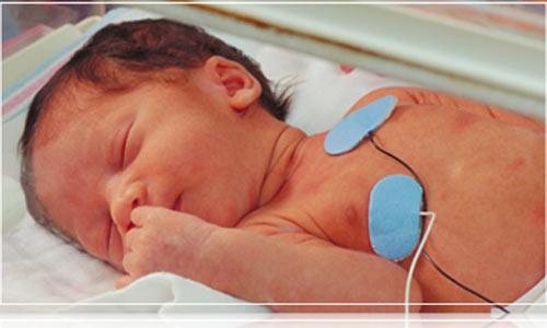 Trẻ sơ sinh bị Đảo gốc động mạch - là một dị tật tim bẩm sinh hiếm gặp mà thông thường tới 99% sẽ tử vong. ẢNh minh họa
