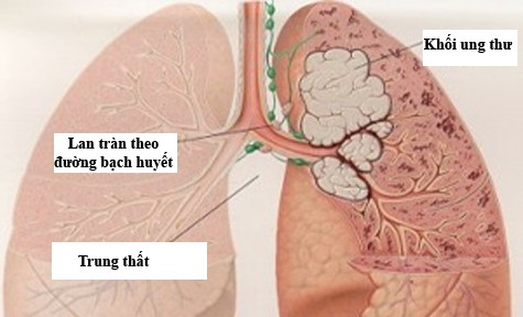 Nguy cơ bị ung thư phổi của những người hút thuốc cao hơn gấp 10 lần so với những người không hút thuốc. Ảnh minh họa
