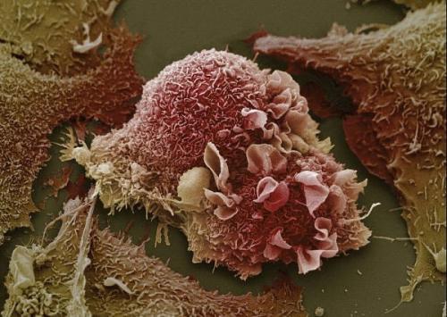 Ung thư : Con số đáng báo động