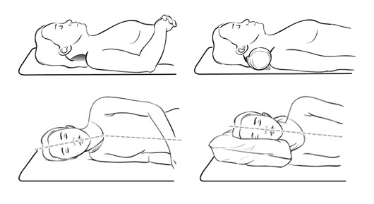 Tư thế ngủ chữa đau lưng hiệu quả