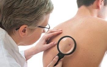 Ung thư da là một căn bệnh vô cùng nguy hiểm