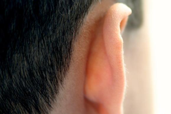 Đằng sau tai là vị trí rất dễ phát ung thư da