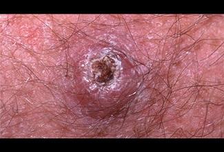 Trị mụn sai cách có thể khiến ung thư da phát triển mạnh hơn
