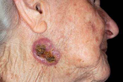 Ung thư da có thể xuất hiện ở những vị trí không ngờ