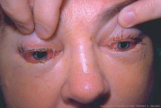 Mắt sưng phù vì nhiễm khuẩn từ thịt lợn. Ảnh Internet