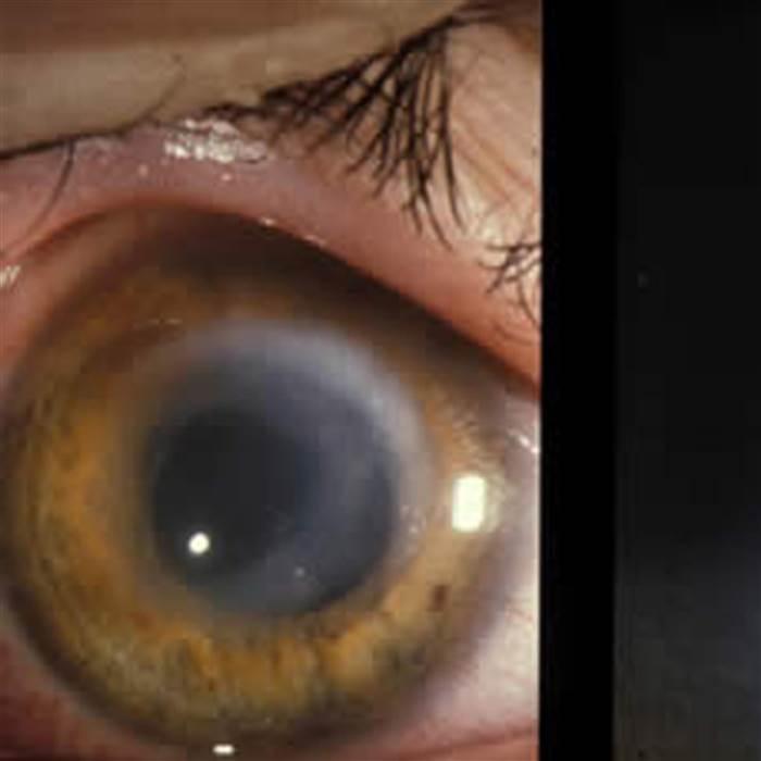 Đeo kính áp tròng có nguy cơ nhiễm trùng cao
