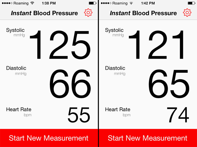 Ứng dụng y tế trên di động vào đo nhịp tim cho kết quả không chính xác