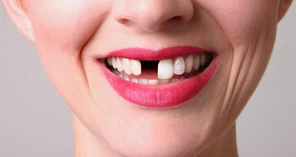 Ham rẻ làm răng sứ kém chất lượng cẩn thận hỏng cả hàm răng