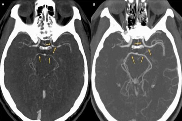 Ảnh chụp CT cho thấy những mạch máu chính trong não người đàn ông 34 tuổi bị co lại bất thường. Ảnh: ScienceNews