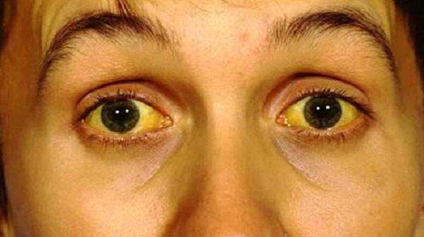 Màu mắt thay đổi bất thường có thể là dấu hiệu bệnh nguy hiểm