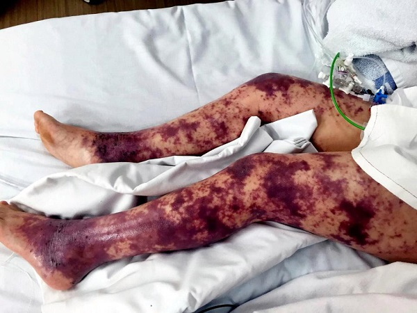 Cô bé mất cả hai chân vì nhiễm vi khuẩn nguy hiểm sau khi bơi lội trên biển