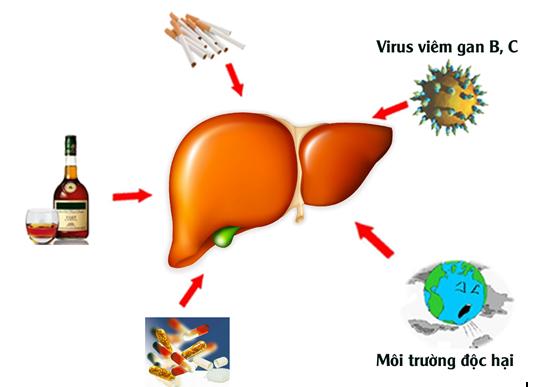 Bệnh xơ gan là căn bệnh nguy hiểm do nhiều nguyên nhân gây nên