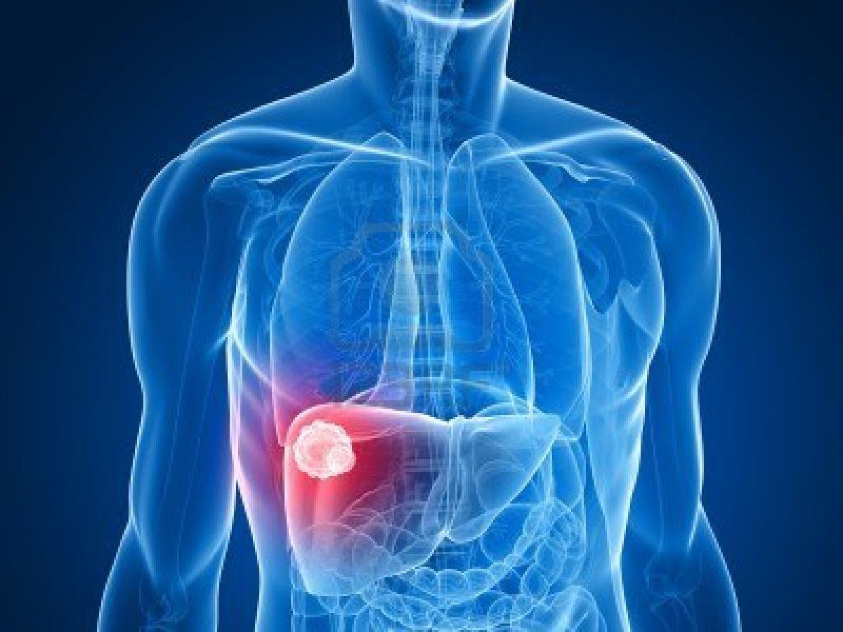 Ung thư gan cũng là căn bệnh nam giới có tỷ lệ mắc cao