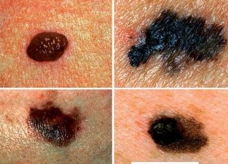 Nhiễm virus HPV cũng là nguyên nhân gây nên ung thư da