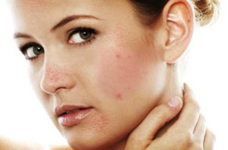 Ung thư da là căn bệnh nguy hiểm thường là do tiếp xúc nhiều với tia cực tím