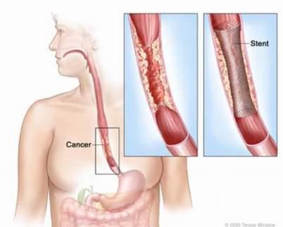 Ung thư thực quản là căn bệnh nguy hiểm và khó phát hiện sớm