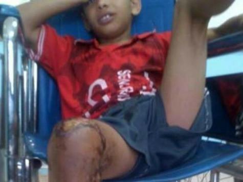Cậu bé 10 tuổi người Yemen bị bỏng một chân sau trò đùa của một nhóm thiếu niên trong làng