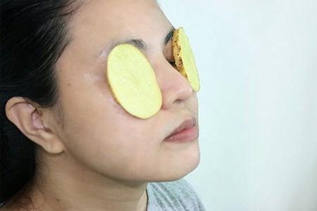 Cách chăm sóc da, giảm quầng thâm mắt hữu hiệu nhờ khoai tây