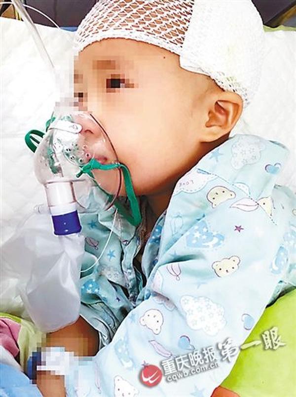 Bé trai 3 tuổi bị chấn thương do ngồi xe đẩy