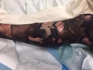Chân của anh Sean Ritz hoàn toàn biến dạng sau khi chiếc thuốc lá điện tử bốc cháy