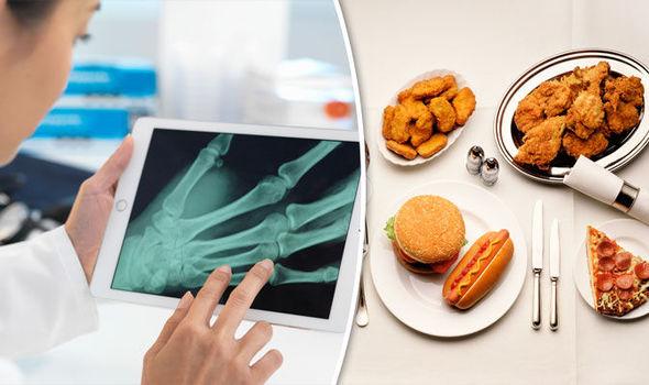 Chế độ dinh dưỡng ảnh hưởng không nhỏ tới sự dẻo dai của xương khớp