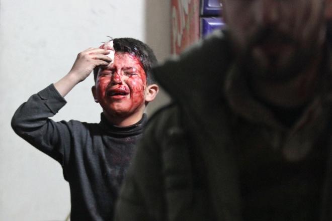 Chỉ riêng tại Aleppo, khoảng 95% bác sĩ đã bỏ trốn, bị giam giữ, hoặc thiệt mạng, khiến người dân khó được điều trị y tế. Ảnh: Reuters