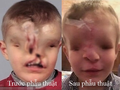 Khuôn mặt trước và sau phẫu thuật của em bé dị dạng Yahya