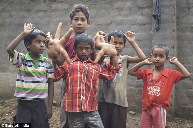 Kaleem được sinh ra với hai bàn tay lớn hơn mức trung bình và chúng tiếp tục phát triển trong suốt thời thơ ấu của cậu