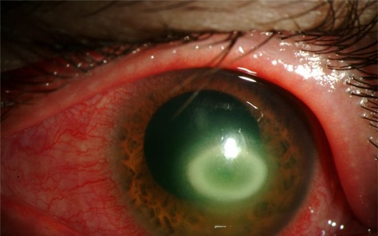 """Acanthamoeba xâm nhập vào cơ thể thông qua kính áp tròng, vết thương trên cơ thể… Sau khi trú ngụ được trên cơ thể, chúng thường tự """"vỗ béo"""" mình bằng cách ăn vi khuẩn tồn tại trong mắt kính áp tròng bẩn, vết thương hở. Khi kính áp tròng nhiễm ký sinh trùng được áp vào mắt người, Acanthamoeba sẽ bắt đầu ăn mòn giác mạc, lớp ngoài cùng của nhãn cầu và sinh sôi nảy nở."""