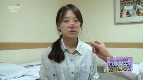 Dụng cụ thẩm mỹ tại nhà có khả năng gây biến dnagj khuôn mặt của người sử dụng, đặc biệt là độ tuổi dậy thì
