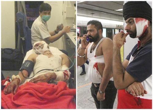 Người bị thương tại ga tàu Hong Kong, theo những tin tức mới cập nhật 24h hôm nay