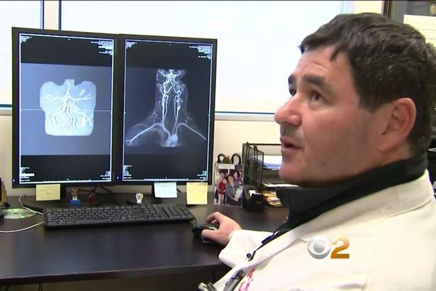 Bác sĩ giải thích nguyên dân dẫn tới đột quỵ